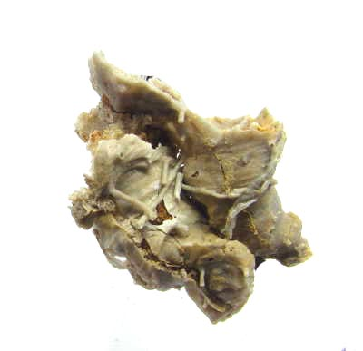 This fossil is called Prorichtofenia permiana . It is an inarticulate brachiopod from the Permian Period.